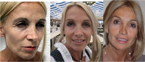 Forever Young Tablets Before after Pictures